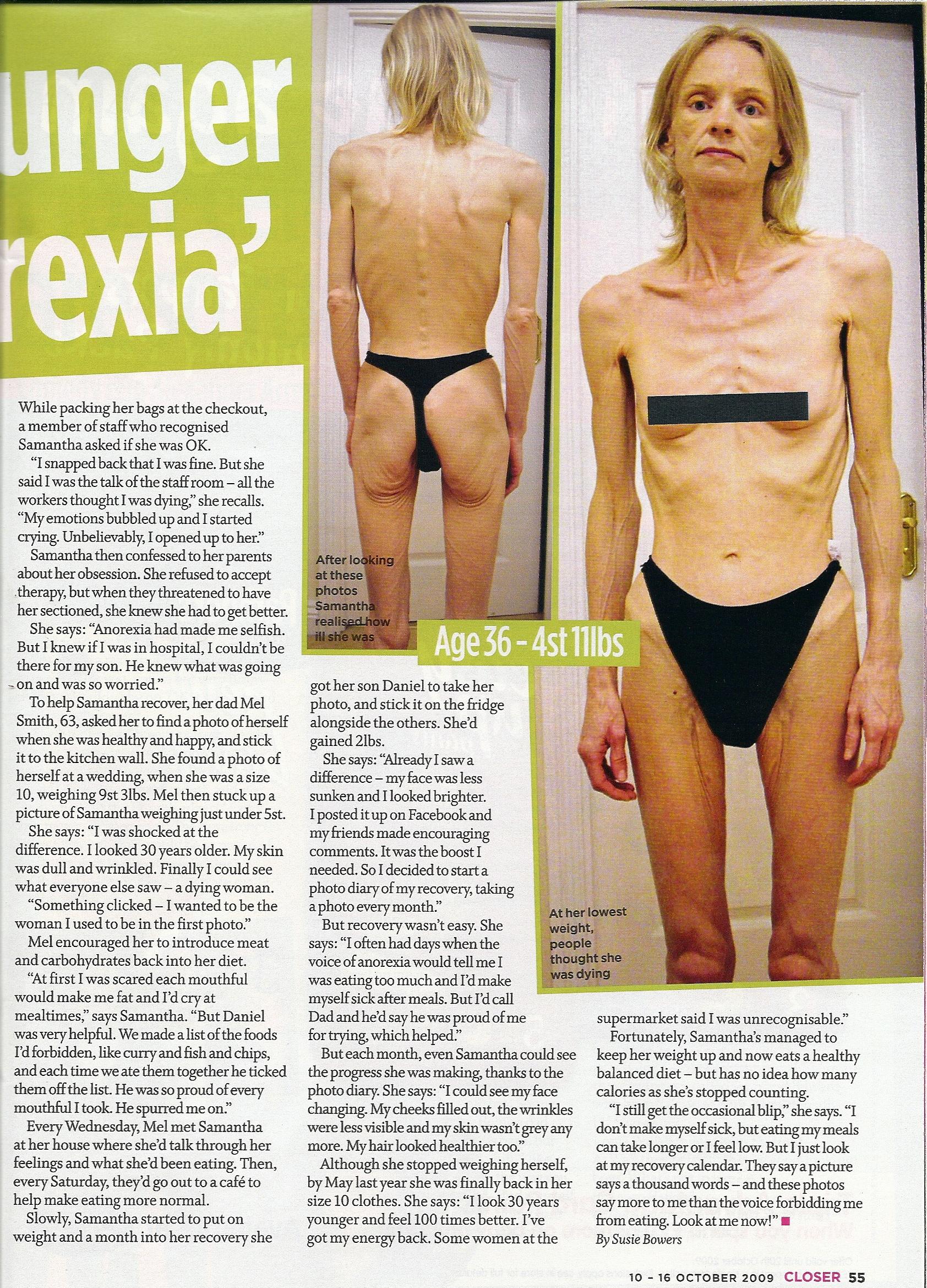 Fotografias de la anorexia y bulimia 22