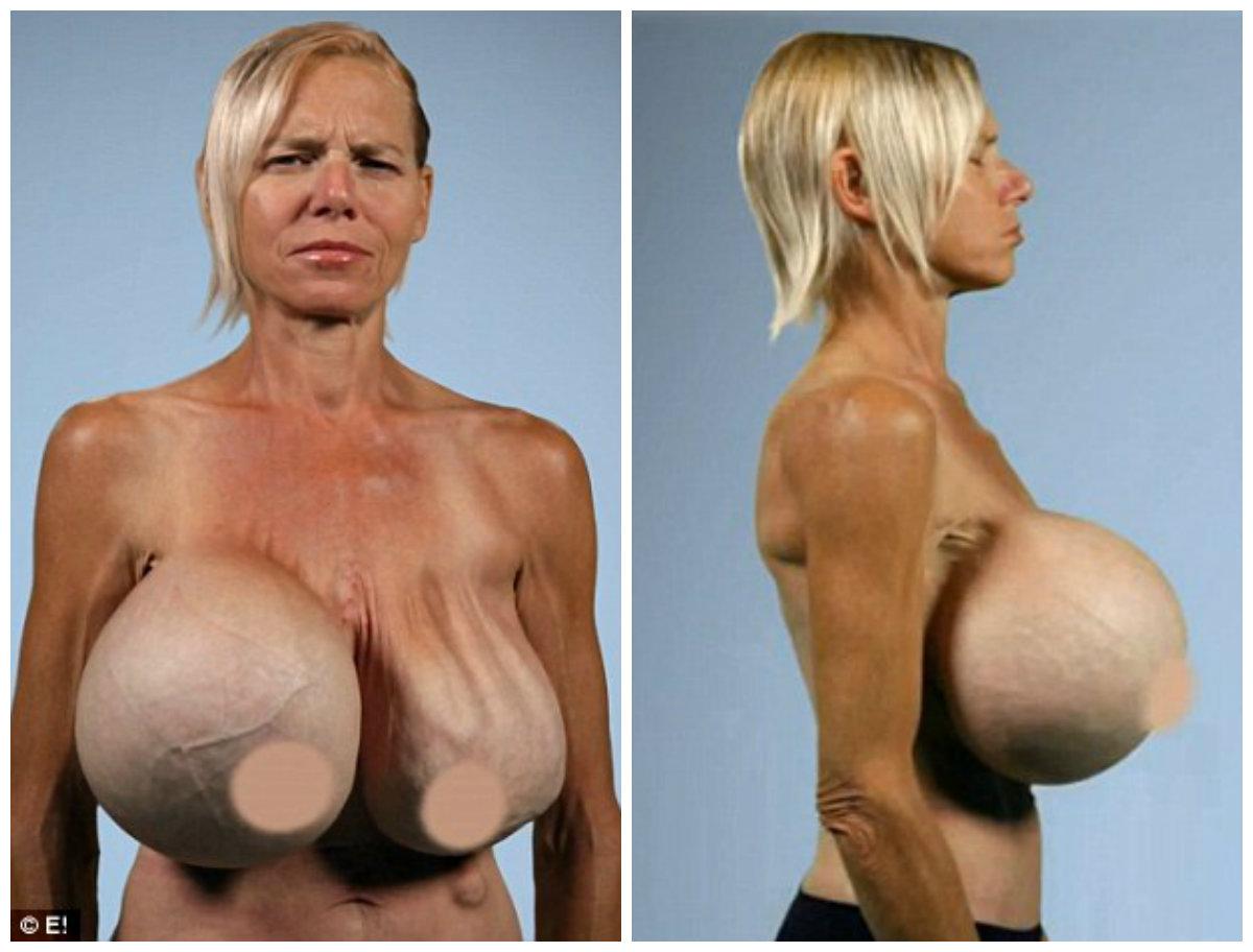 Фото естественной груди без силикона